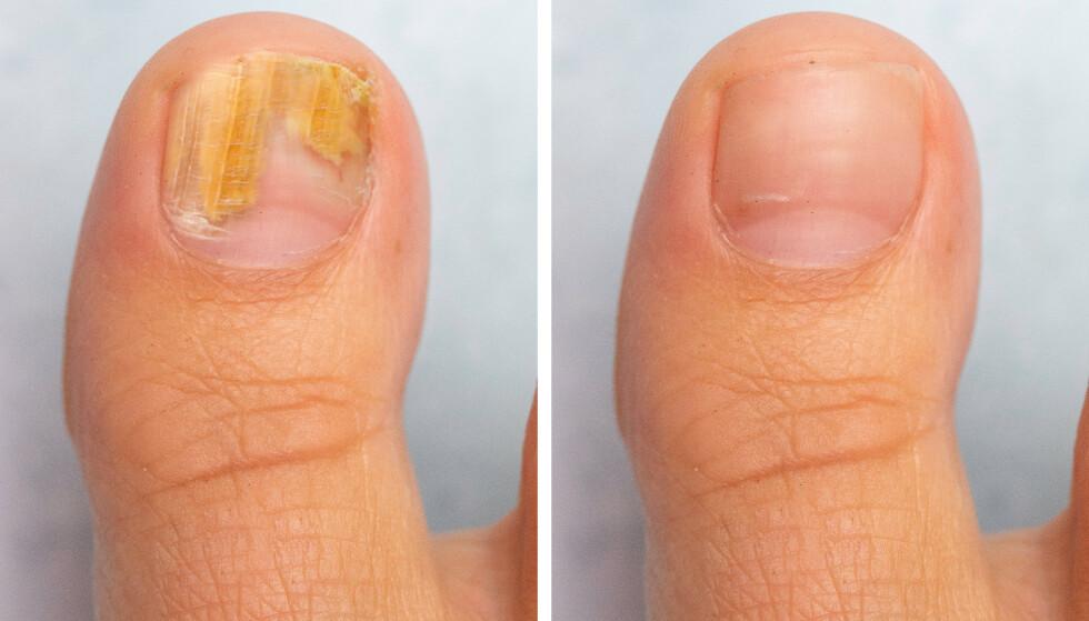 FØR OG ETTER BEHANDLING: Neglesopp kjennetegnes ved at negleplaten gulner og fortykker seg slik at den løsner fra huden. Foto: NTB Scanpix