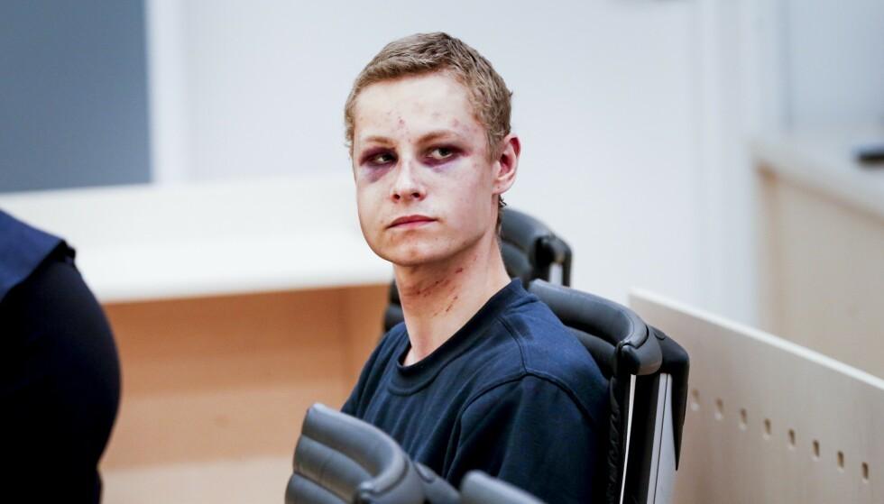FENGSLINGSMØTE: Philip Manshaus (22) avbildet under sitt første fengslingsmøte i august. Her hadde han tydelige merker etter basketaket inne i moskeen. Foto: Henning Lillegård / Dagbladet