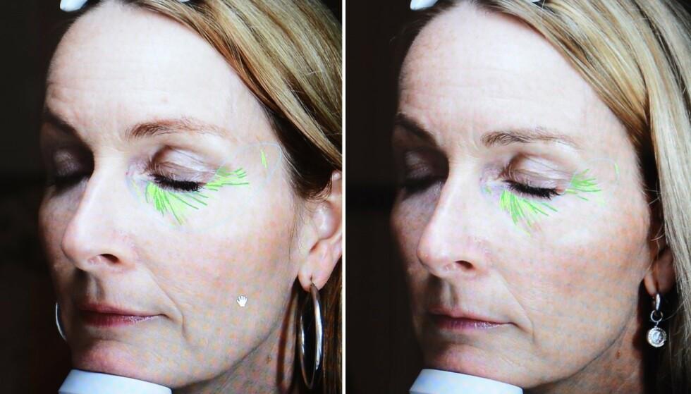Slik gikk det da Heidi (48) testet skjønnhetsbransjens store snakkis