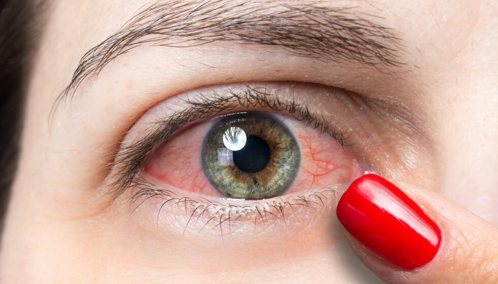 PASS PÅ: Mange forsøke å bøte på de tørre øynene ved å dryppe øynene med saltvann. Det kan faktisk gjøre vondt verre, ifølge øyelege Sten Ræder.