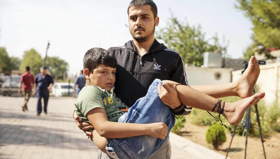 SPLINTSKADER: Denne gutten har fått splintskader i foten. Han hastes inn på sykehuset for behandling. Foto: Niclas Hammarström / Expressen