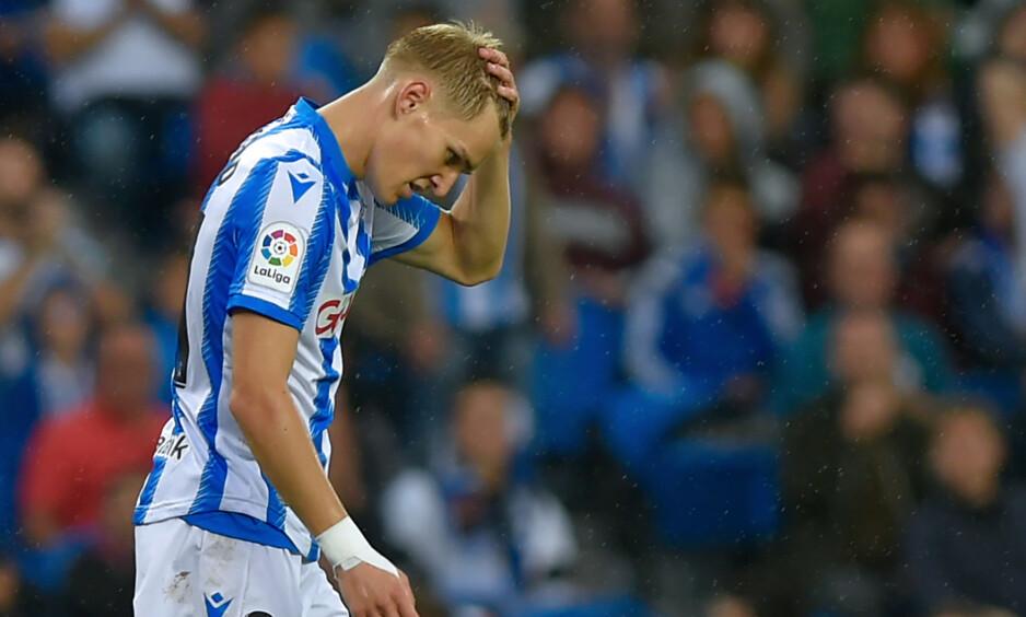 USIKKER: Martin Ødegaard er fortsatt skadet og er usikker til de to gjenværende EM-kvalifiseringskampene. Foto: ANDER GILLENEA / AFP / NTB Scanpix