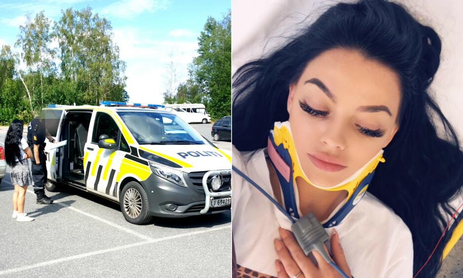 UTSATT FOR VOLD: I august ble toppblogger Stina Bakken slått til av en fremmed mann på stranden i Sandefjord, midt på høylys dag. I ettertid har hun slitt med smerter i både nakke og kjeve, og nå risikerer hun å måtte gjennomgå en kjeveoperasjon som følge av slaget hun ble påført. Foto: Privat