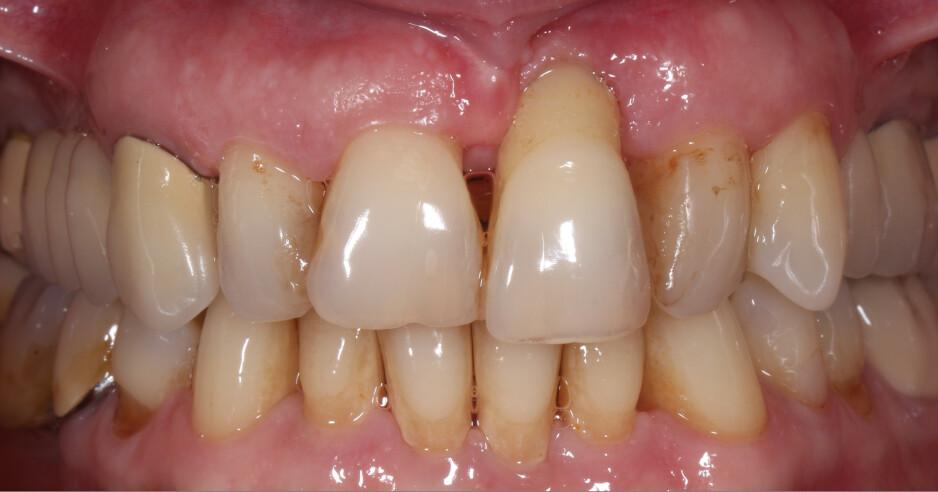 PERIODONTITT: Tannkjøttsykdommen kan forebygges og behandles. Illustrasjonsfoto: Shutterstock / NTB Scanpix