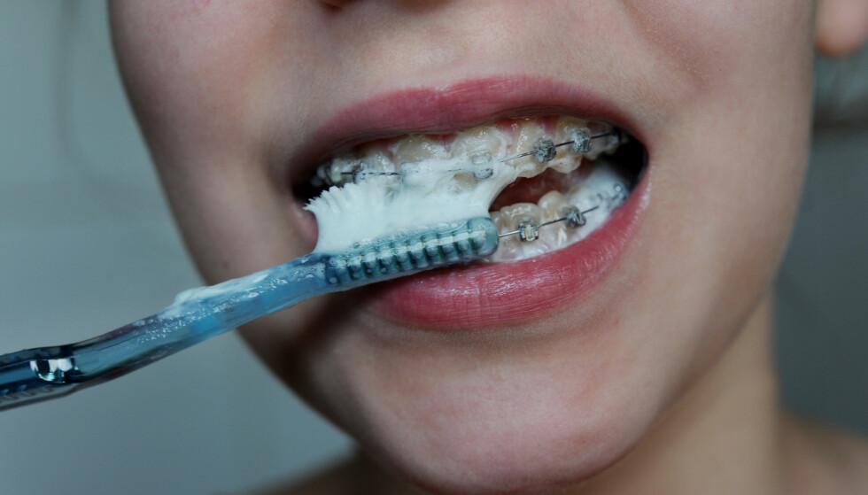 IKKE FARLIG: Det er ikke farlig å bruke fluortannkrem. Foto: Frank May / NTB Scanpix