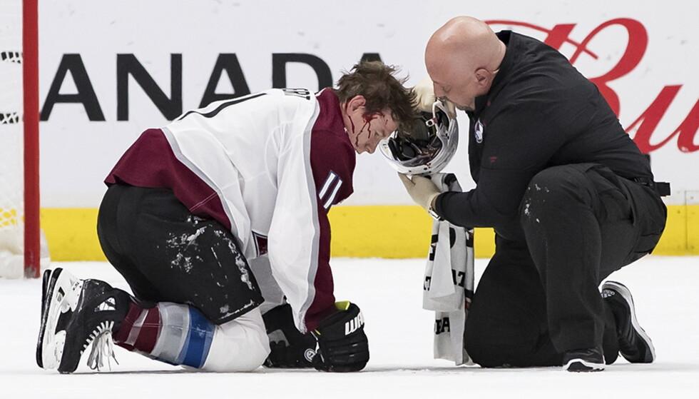 FÅR BEHANDLING: Colorado Avalanches Matt Calvert fikk seg en skikkelig smell etter å ha blitt truffet fra kloss hold. Foto: Darryl Dyck/The Canadian Press/NTB Scanpix