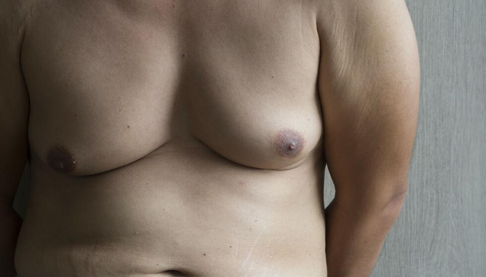 EFFEKTIVE METODER: Brystutvikling hos menn kan ha flere årsaker. FOTO: NTB Scanpix