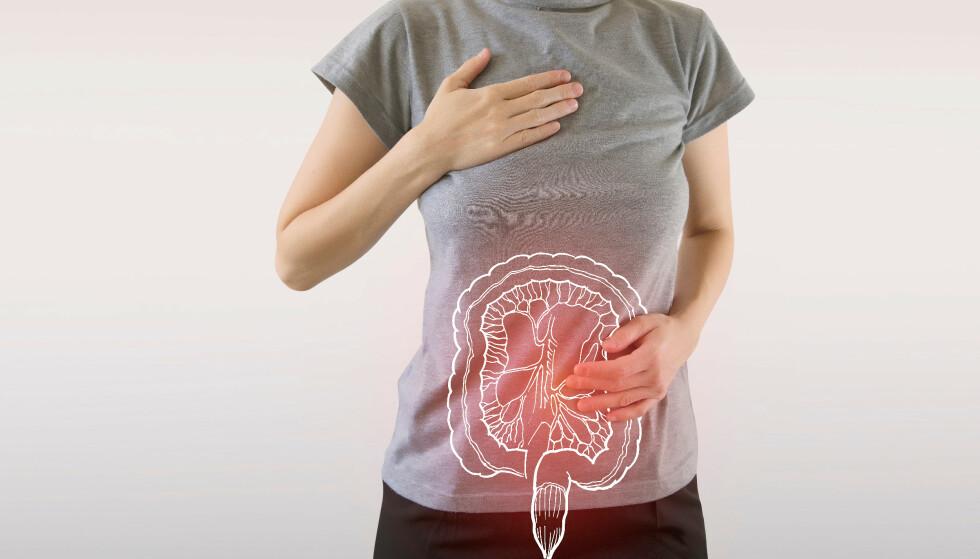 NORSK METODE: En ny metode for å oppdage tarmkreft er blitt utviklet i Norge. Forskerne mener treffsikkerheten øker med 62 prosent. Foto: Shutterstock/NTB Scanpix