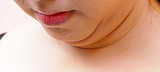 Oppskriften: Bli kvitt fettet under haka