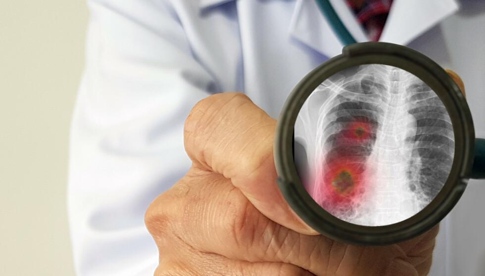 VIKTIG VAKSINE: Coronaviruset gir en infeksjon i nedre luftveier eller i lungene, noe som gjør at du får en lungebetennelse. FOTO: NTB Scanpix