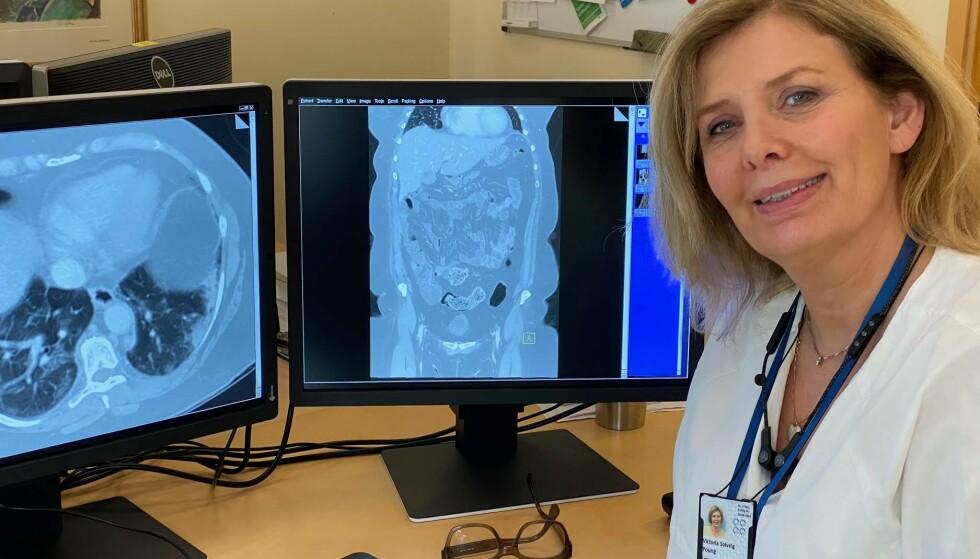 FANT COVID-19: Overlege Victoria Solveig Young ved Seksjon for abdominal og onkologisk radiologi som vurderte CT-undersøkelsene av magen. Foto: Privat