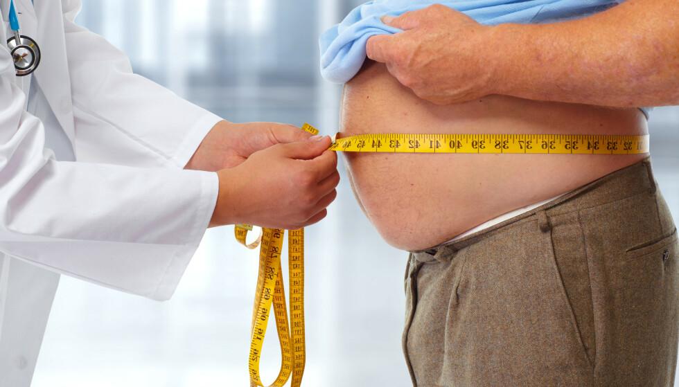 ØKT RISIKO: - De med fedme kan ha nedsatt motstandsdyktighet og noe dårligere immunforsvar, og da påvirker det dem på en negativ måte hvis de får corona, sier professor Jøran Hjelmesæth. Illustrasjonfoto: NTB Scanpix/Shutterstock