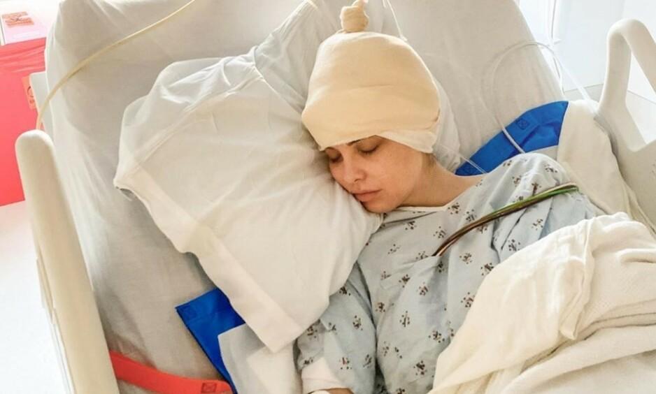 OPERERT: Den australske influensere Emily Sears gjennomgikk nylig hjerneoperasjon, mens hun fremdeles var våken. Foto: Skjermbilde Instagram