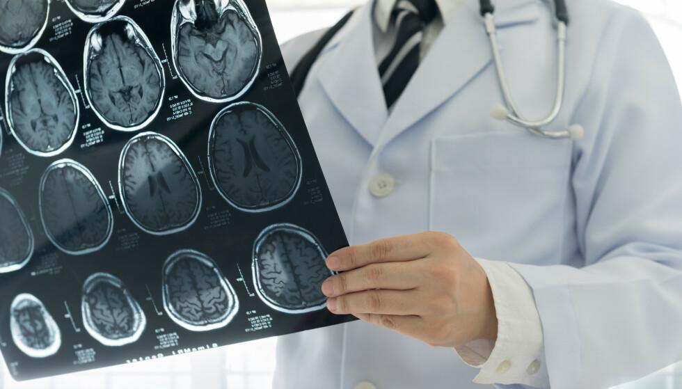 ÅRSAK TIL HJERNESLAG: Mindre kjente risikofaktorer kan doble til tredoble risikoen din for å få hjerneslag. Faktorene er knyttet til livsstil, og kan forebygges. Har du allerede økt risiko, kan den reduseres uten bruk av medisiner. FOTO: NTB Scanpix