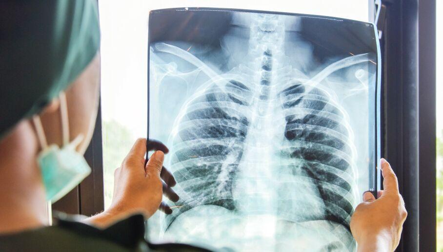 LUNGER: Enkelte grupper er utsatt for vedvarende lungeskader etter Covid-19. ILLUSTRASJONSFOTO: NTB Scanpix