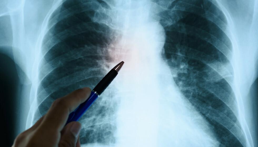 SEINSKADER: Coronasykdom kan også påvirke hjertet. Det er imidlertid for tidlig å si hva dette vil ha å si for coronapasientene i det lange løp. Foto: Komsan Loonprom / Shutterstock / NTB