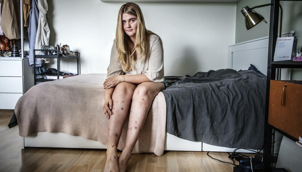 DERMATILLOMANI: Da Ebba var yngre plukket hun seg mest i ansiktet og på armene. I dag er beina mest berørt. Foto: Anna-Karin Nilsson