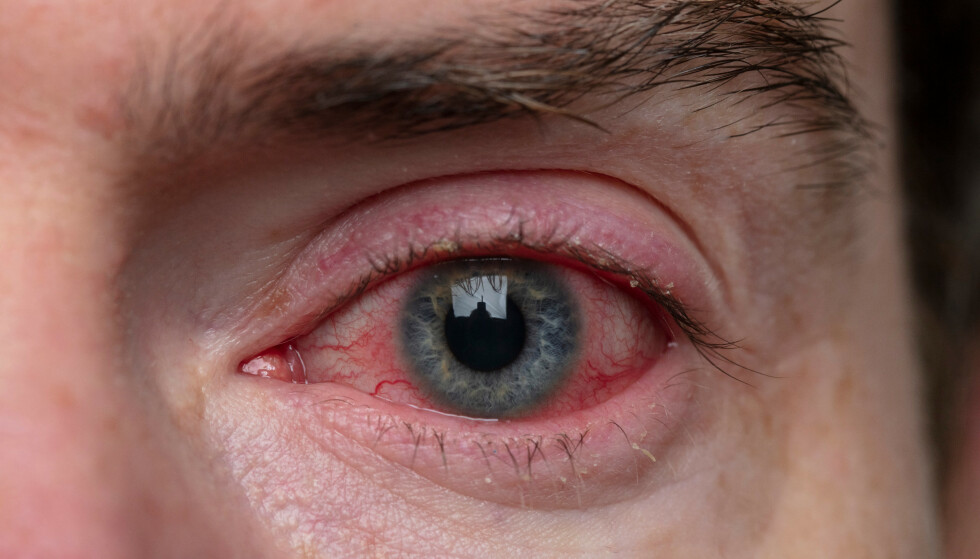 RØDT ØYE: Et rødt øye trenger ikke være alvorlig, men i kombinasjon med andre symptomer bør du oppsøke lege. Foto: Shutterstock / NTB Scanpix.
