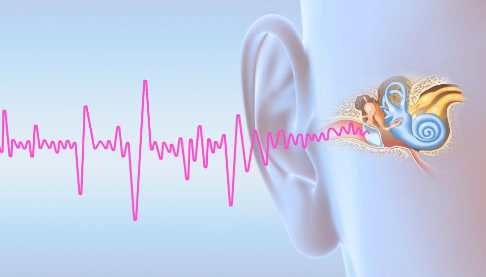 NY HJELP: Rundt 800.000 nordmenn er i ulik grad rammet av hørselsskaden tinnitus. Nå har 326 mennesker prøvd ut en helt ny behandlingsmetode - som forhåpentligvis vil gjøre framtida lettere å håndtere. Foto: NTB Scanpix