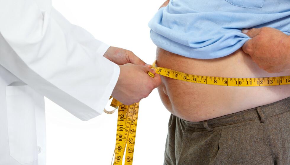 FEDME: Alvorlig fedme er en kronisk sykdom som virker negativt på mange prosesser i kroppen. Foto: NTB Scanpix / Shutterstock