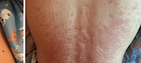Covid-19 utløser farlig barnesyndrom
