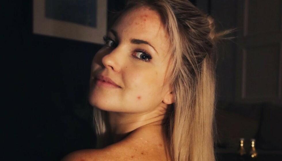 OVERRASKER: Den norske influenseren Emilie Nereng delte et svært ærlig bilde med følgerne sine på Instagram. Nå forklarer hun hvorfor. Foto: Privat