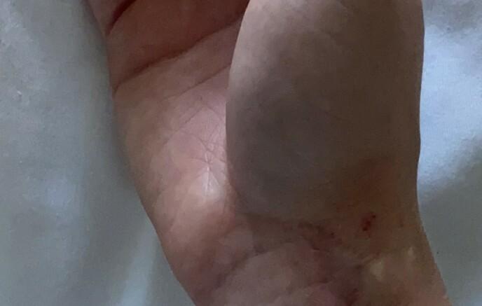 SKADET: Hånda til Genette hovnet raskt opp etter nattesten. Hun slapp heldigvis operasjon. Arret er fra en tidligere skade. Foto: Privat