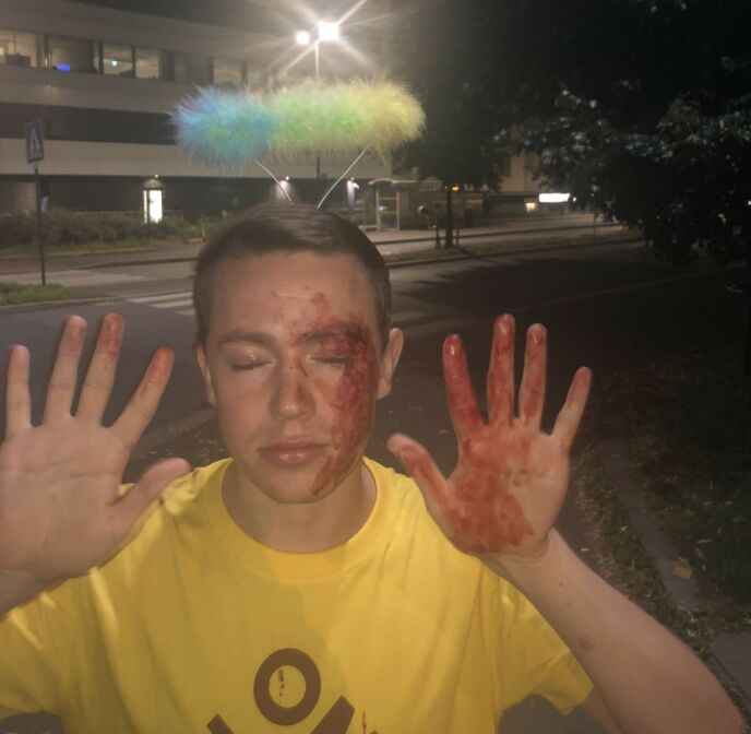 SKALLET NED: På vei hjem fra byen ble Edvin skallet ned i møte med personer som ikke likte «sånne som ham». Foto: Privat