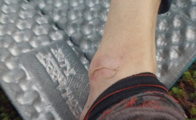 AU: Da Henrik Elvestad tok av seg sokken sin fikk han et uventet syn. Foto: TVNorge