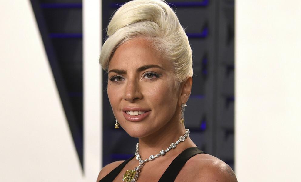 HUNDENE BLE STJÅLET: I går kveld ble Lady Gagas hundepasser skutt og to av hundene hennes ble stjålet. Nå snakker superstjernas far ut. Foto: Evan Agostini /Invision / AP / NTB