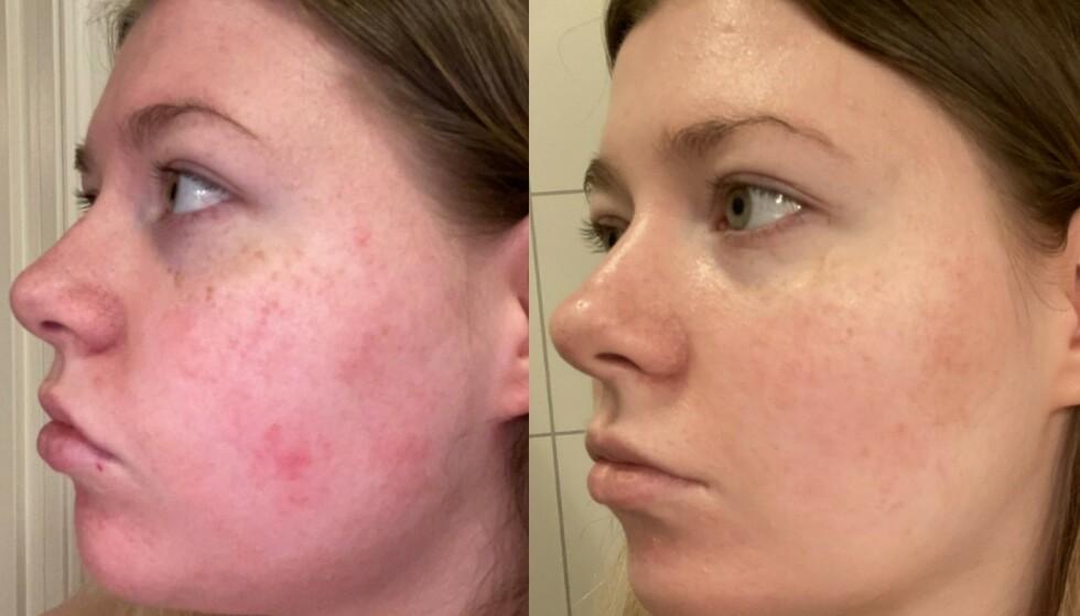 Stor forandring: Før var huden ru, oljete og rød! Nå har huden blitt myk, jevnere og mye mindre rød!