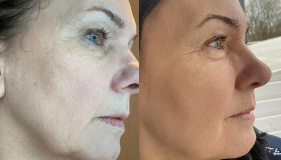 Mykere linjer: Anne Guro har fått mykere hud, mer glød, jevnere struktur og hudtone etter å ha brukt Hyaluronic Acid og Vitamin C. Og se hvor mye mykere linjene har blitt!