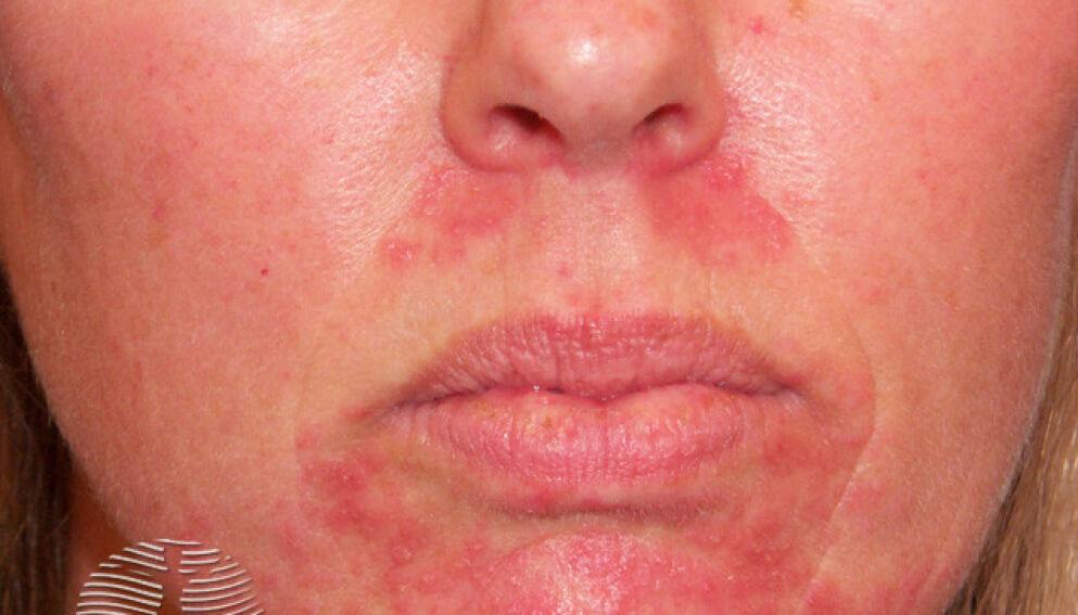 KAN VÆRE HUDSYKDOM: Ved hjelp av behandling vil huden som oftest bli helt bra etter noen uker. Foto: DermNet NZ