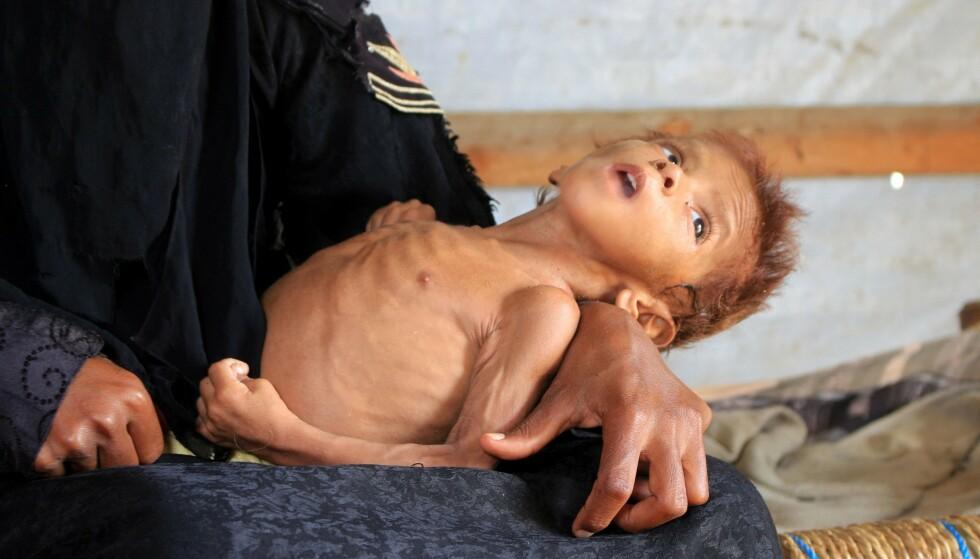 SULT SOM VÅPEN: I boka beskriver Cecilie Hellestveit blant annet hvordan sult brukes som våpen. Her er fire år gamle Meshaal Mohammad på fanget til moren sin i en leir for internflyktninger i Hajjah-provinsen i Jemen, fotografert 2. mars i år. Foto: NTB / ESSA AHMED / AFP