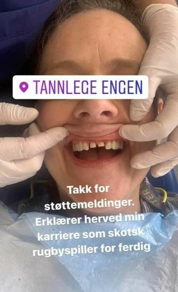 BEHANDLING: Komikeren la ut dette bildet på Instagrams historiefunksjon, etter et litt uheldig møte med en gulrot. Foto: Henriette Steenstrup / Instagram