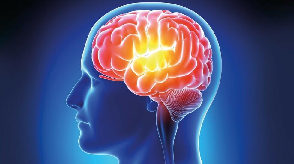 MYSTISK HJERNESYKDOM: Det er nå registrert 43 pasienter med en ukjent hjernesykdom, og det undersøkes om sykdommen er noe som forekommer lokalt. Foto: NTB