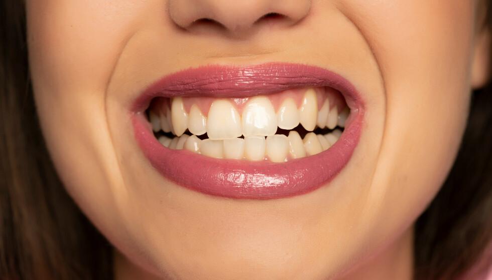 SLITER PÅ TENNENE: Mange er ikke klar over at de gnisser tenner, mens andre har symptomer. Mellom ti-20 prosent av befolkningen sliter med tanngnissing. Foto: Shutterstock