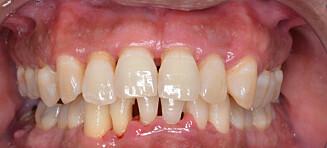 Studie om periodontitt: Ukjent risikofaktor