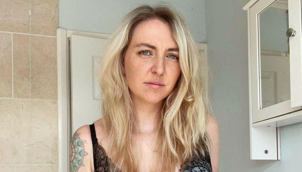 UTFORDRENDE SYKDOM: Rebekah Wilkinson sleit i mange år med sykdommen Ulcerøs kolitt. Foto: Privat / Rebekah Wilkinson