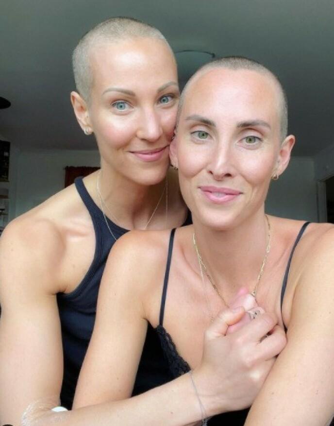 BARBERTE HÅRET: Elin Kjos' tvillingsøster har også barbert av alt håret. Foto: Privat