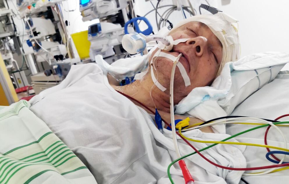 HJERNEBLØDNING: To uker etter at Thommy Viklund hadde tatt AstraZeneca-vaksinen døde han i forbindelse med en hjerneblødning. Det svenske legemiddelverket gransker fortsatt dødsfallet, og har ikke konkludert i saken. Bildet av Viklund på Norrlands universitetssykehus er brukt med tillatelse fra Viklunds søster Therese, som ønsker å gjøre folk oppmerksom på mulige bivirkninger. Foto: Privat