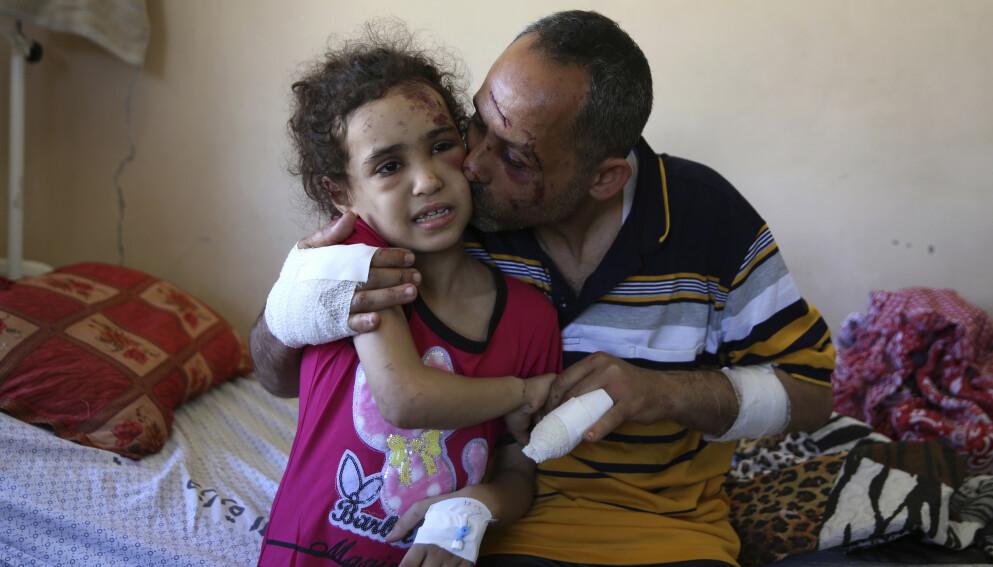 I SJOKK: Suzy (7) og faren Riad Ishkontana (42) sitter i en seng på Shifa-sykehuset, midt i Gaza-by. De er de eneste overlevende etter at et israelsk flyangrep bombet huset de lå og sov i, natt til søndag. De to ble dratt ut av ruinene etter mange timer. Foto: Ap / Scanpix