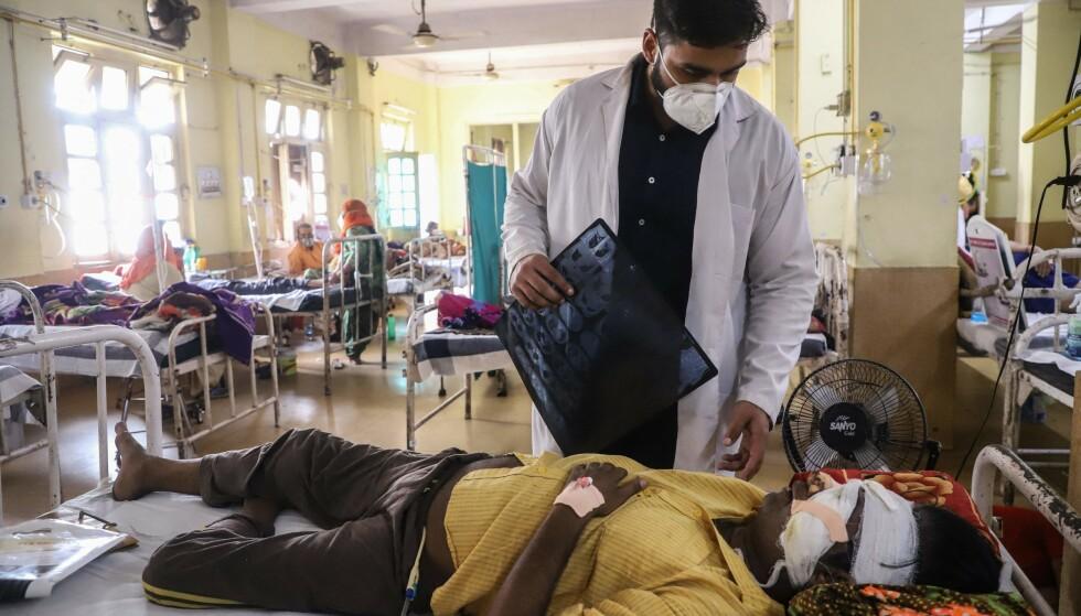 BEHANDLES: En Covid-19-pasient behandles for den dødelige covid-soppen på NSCB-sykehuset i Jabalpur. Foto: AFP