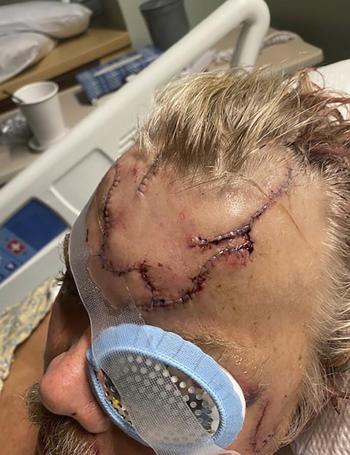 ANGREPET: Slik så Allan Minish ut etter at han hadde blitt angrepet av en brunbjørn i Alaska. Foto: AP