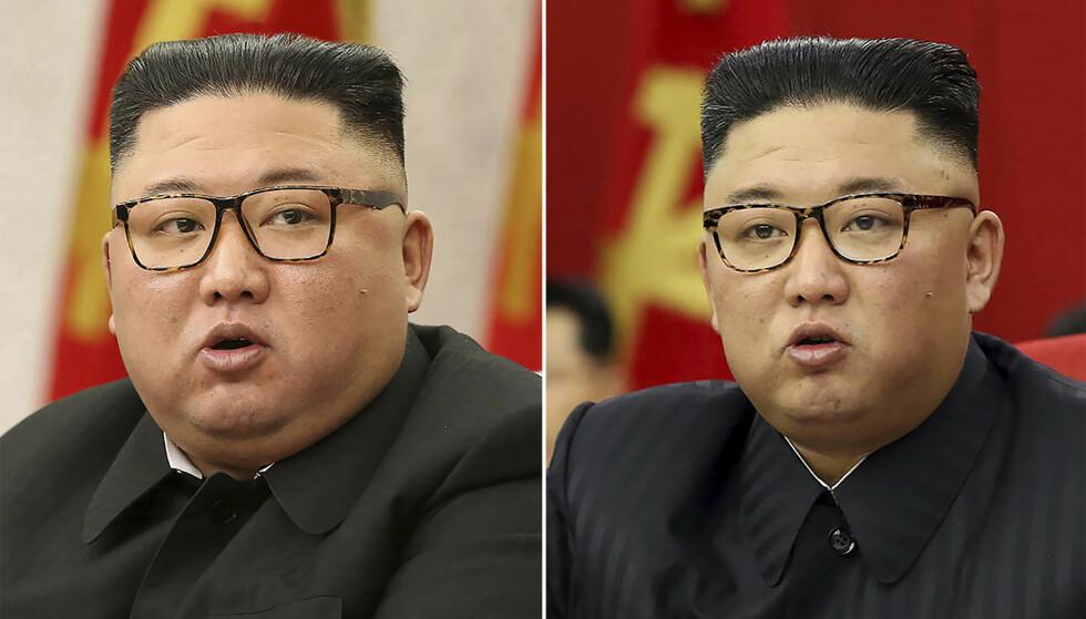 DA OG NÅ: Kim Jong-un har måttet stramme inn brillene siden i vinter. Foto AP / NTB