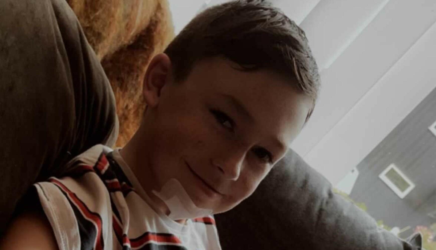 SKREVET UT: Emil (14) er skrevet ut fra sykehus, men må på kontroll på Haukeland sykehus i seks uker. Foto: Privat