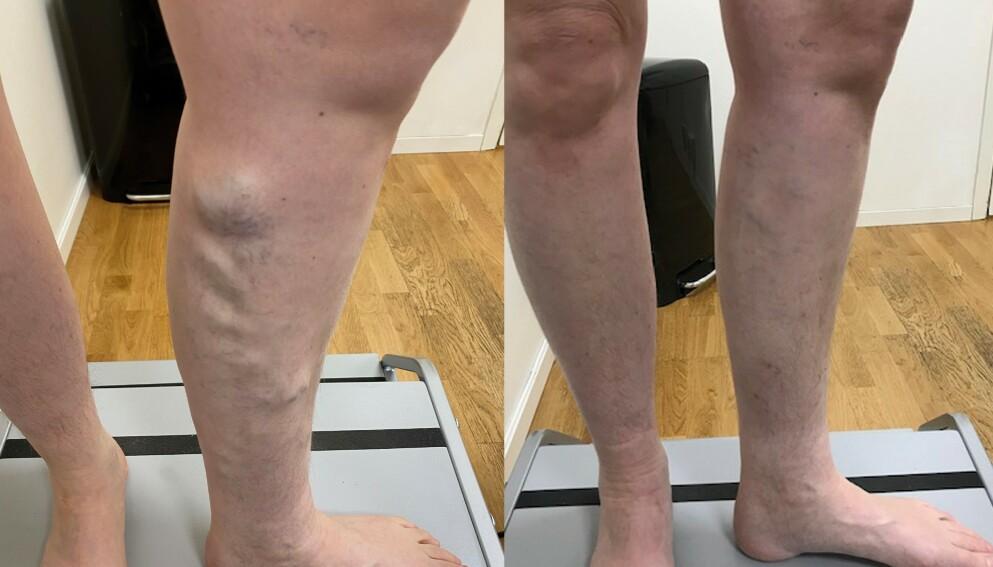 BEHANDLING: Slik kan resultatet bli med en av behandlingstypene. Foto: Åreknuteklinikken