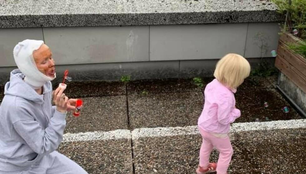 """FØRSTE GJENSYN: Datteren Ellinor kjente igjen sin """"nye"""" mamma Gerd Inger Aarnes på Haukeland universitetssjukehus 16 dager etter den dramatiske brannulykken hjemme i Surnadal. Foto: Privat."""