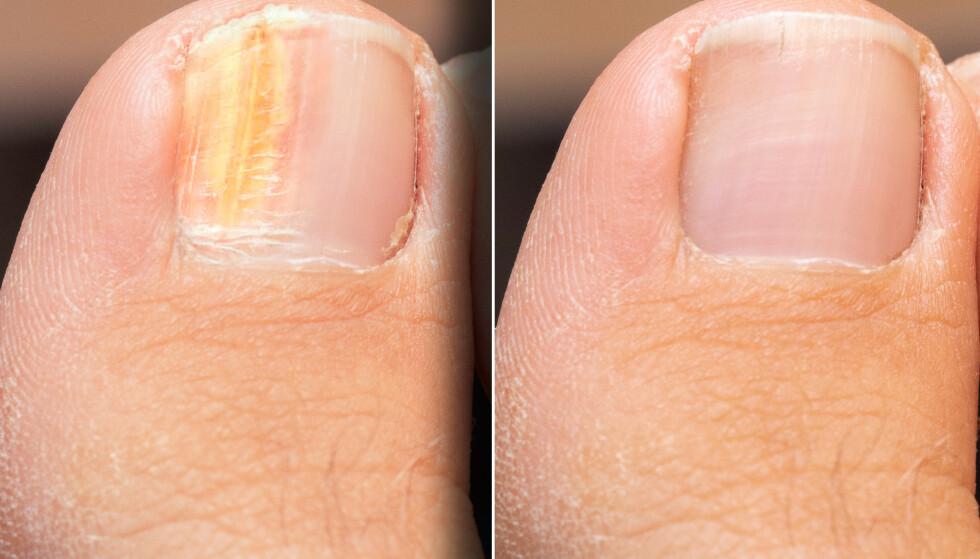 FØR OG ETTER BEHANDLING: Neglesopp kjennetegnes ved at negleplaten gulner og fortykker seg slik at den løsner fra huden. Foto: NTB
