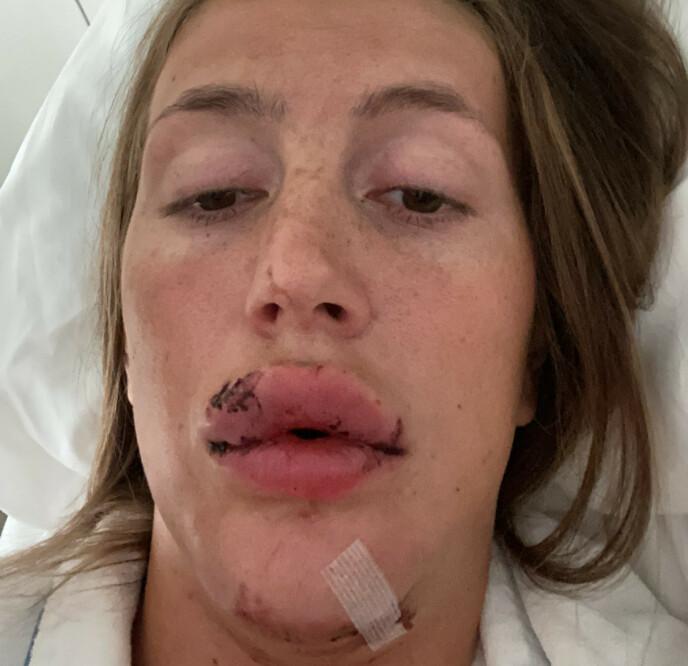 SKADET: Martine ble stygt skadet under treningsøkten med hesten Oblix. Foto: Privat